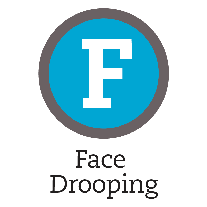 F: Face Drooping