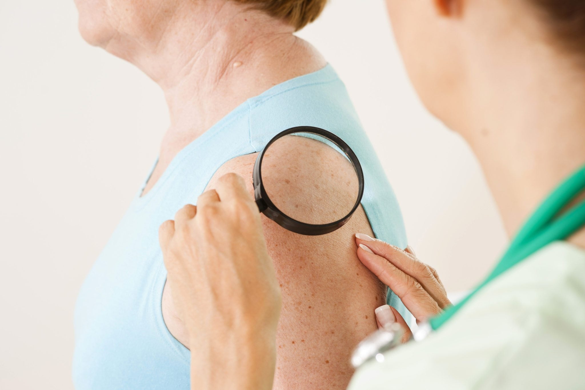 Here's a Roadmap to Skin Cancer . . . And a Way Out