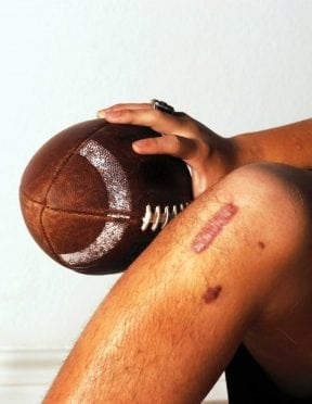 Man with scar on knee holding football.