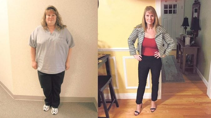 How She Maintains 120 Pound Weight Loss Since Gastric Bypass