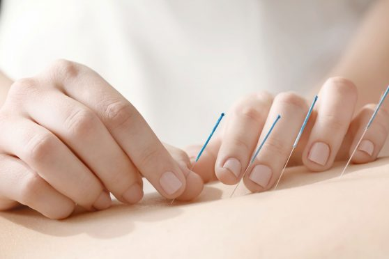 Acupuncture and Cancer