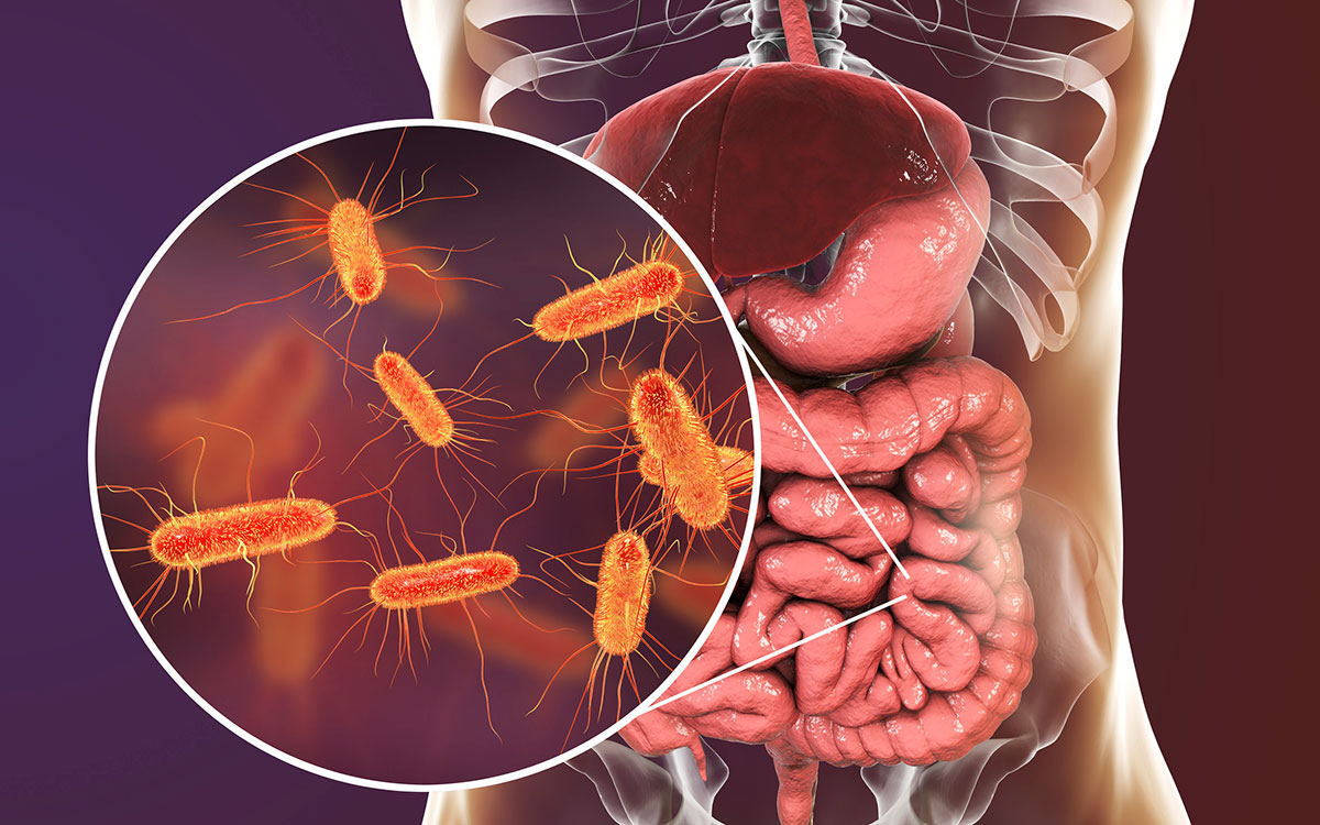 SIBO: When A Big Problem Invades Your Small Intestine