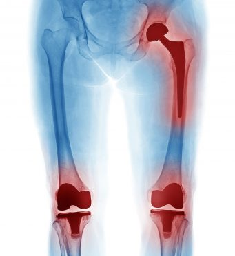 Joint Replacement Lifespan