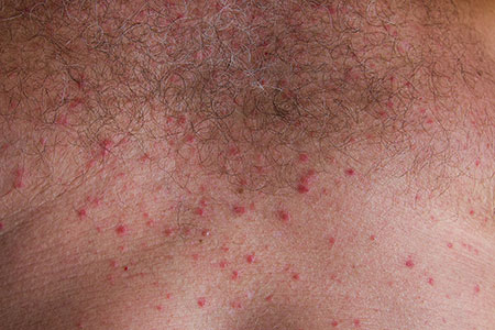 5 Common Summer Rashes And How To Prevent Them Hartford Healthcare Medical Group