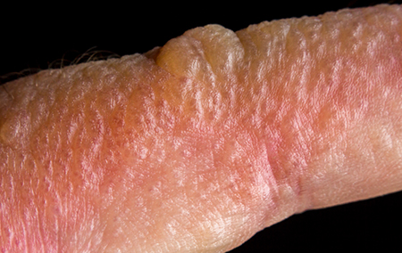 5 Common Summer Rashes and How to Prevent Them | Hartford