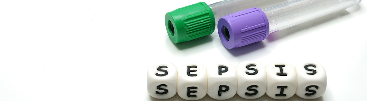 Sepsis: When an Infection Can Become a Silent Killer